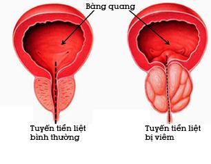 viêm tuyến tiền liệt là gì